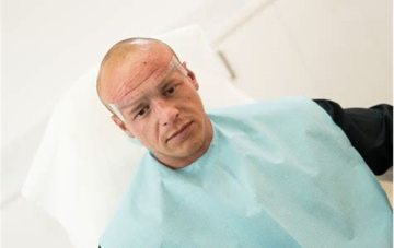 Tricopigmentatie Basis opleiding (scalp)