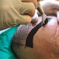 (Scalp) tricopigmentatie basis opleiding